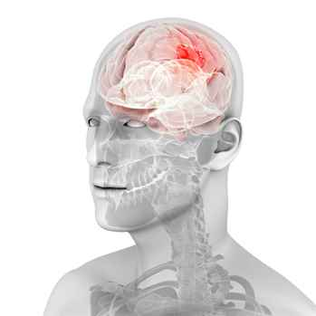 Affordable Brain Tumor Surgery in India Unique and Complete Healthcare Solution